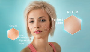 why skip laser treatments