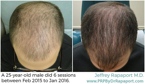 Hair restoration before & after photos 1
