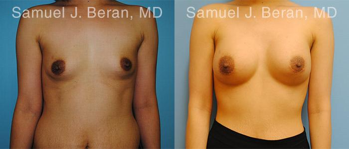 Breast Augmentation before and after photos in Newburgh, NY, Patient 12314