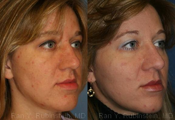 before and after photos in Newburgh, NY, Cheek Augmentation | Hudson Valley, NY