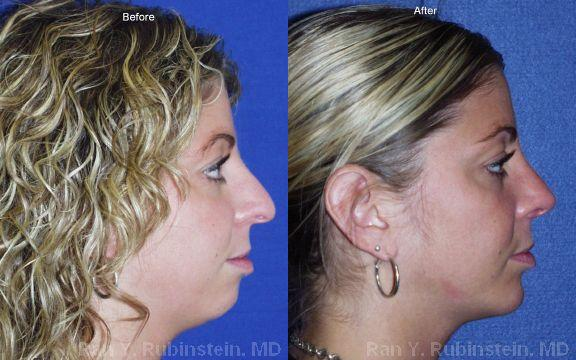 Chin Augmentation before and after photos in Newburgh, NY, Patient 12399