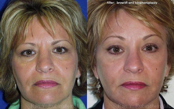 Endoscopic Brow Lift before and after photos in Newburgh, NY, Patient 12513
