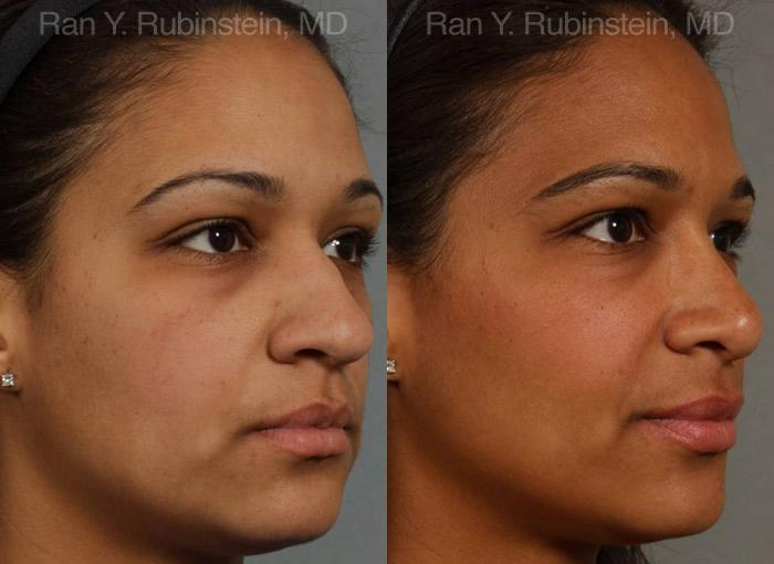 Ethnic Rhinoplasty before and after photos in Newburgh, NY, Patient 12550