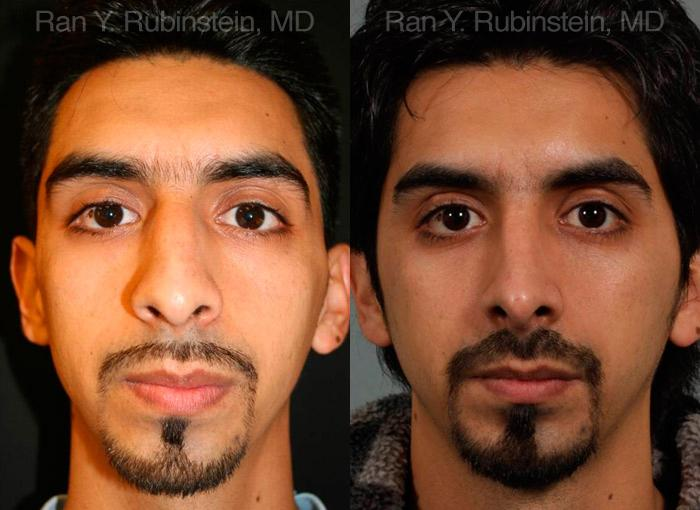 Ethnic Rhinoplasty before and after photos in Newburgh, NY, Patient 12558