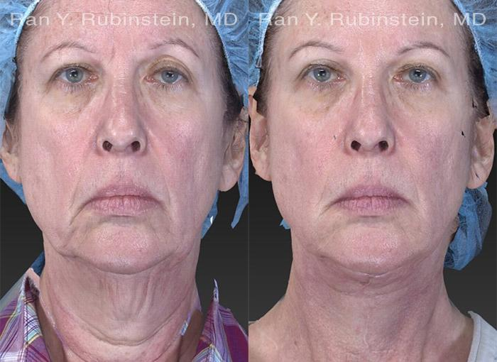 Face lift & Neck lift before and after photos in Newburgh, NY, Patient 12622