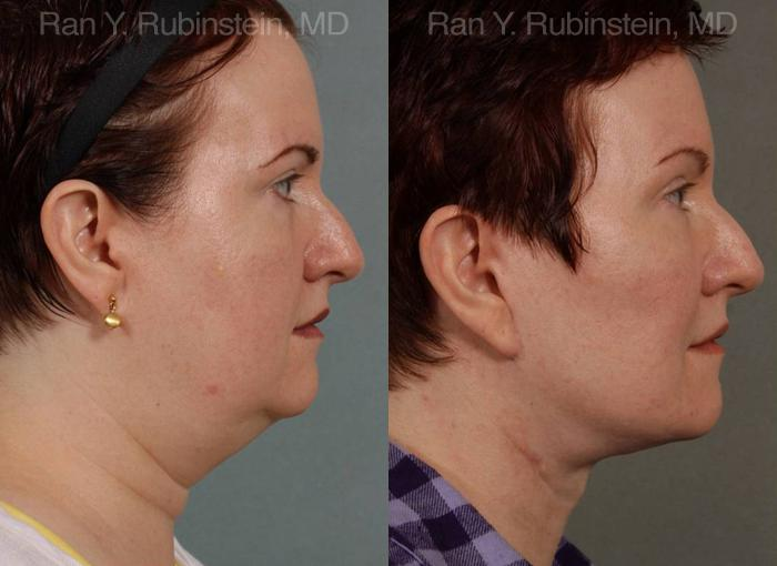 Face lift & Neck lift before and after photos in Newburgh, NY, Patient 12636