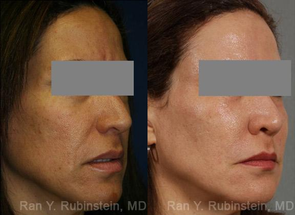 Laser Treatments before and after photos in Newburgh, NY, Patient 12865