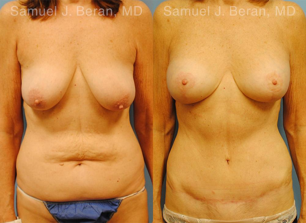 Mommy Makeover before and after photos in Newburgh, NY, Patient 12935