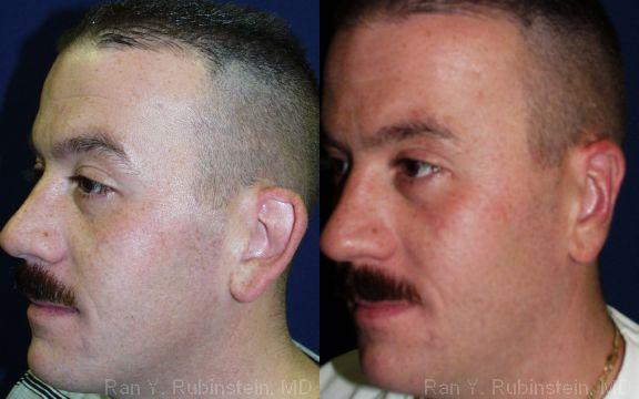 Otoplasty before and after photos in Newburgh, NY, Patient 12947
