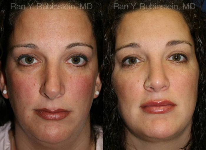 Revision Rhinoplasty before and after photos in Newburgh, NY, Patient 13002