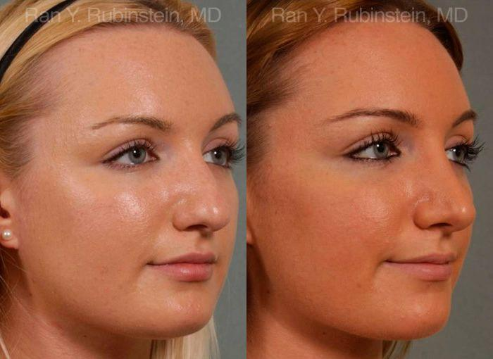 Rhinoplasty before and after photos in Newburgh, NY, Patient 13028