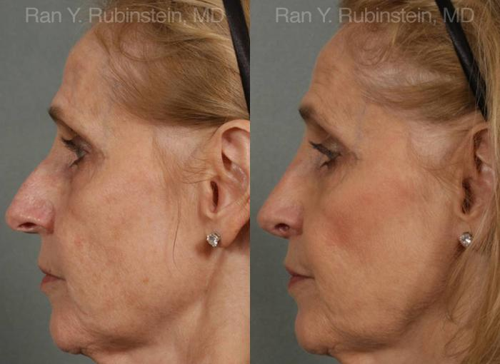 Rhinoplasty before and after photos in Newburgh, NY, Patient 13067