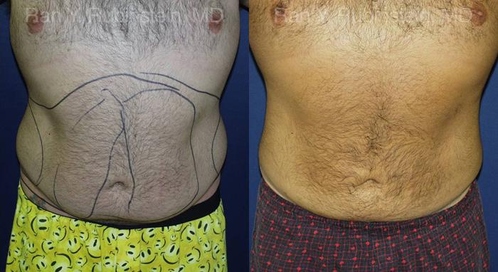 before and after photos in Newburgh, NY, SmartLipo | Hudson Valley, NY