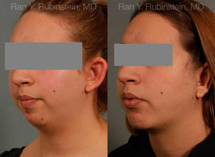 Chin Augmentation before and after photos in Newburgh, NY, Patient 12379