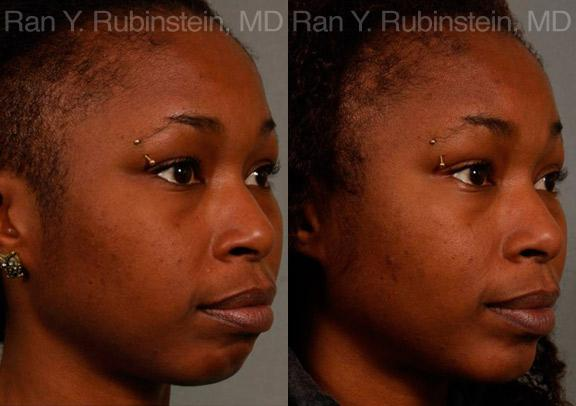 Chin Augmentation before and after photos in Newburgh, NY, Patient 12384