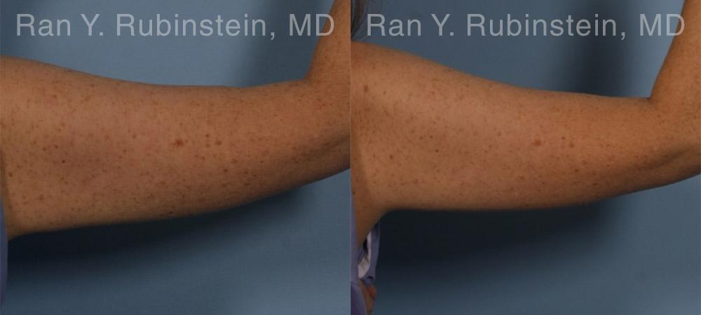 Coolsculpting before and after photos in Newburgh, NY, Patient 12414