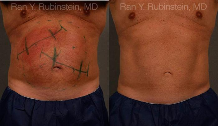 Coolsculpting before and after photos in Newburgh, NY, Patient 12449