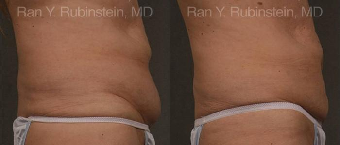 Coolsculpting before and after photos in Newburgh, NY, Patient 12487