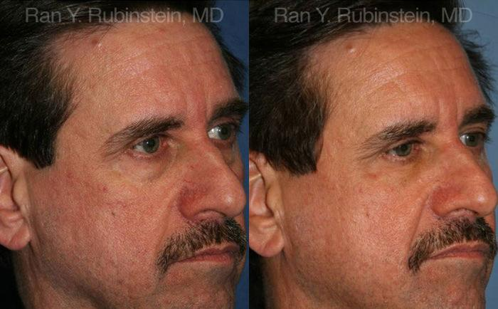 Fat Transfer before and after photos in Newburgh, NY, Patient 12694