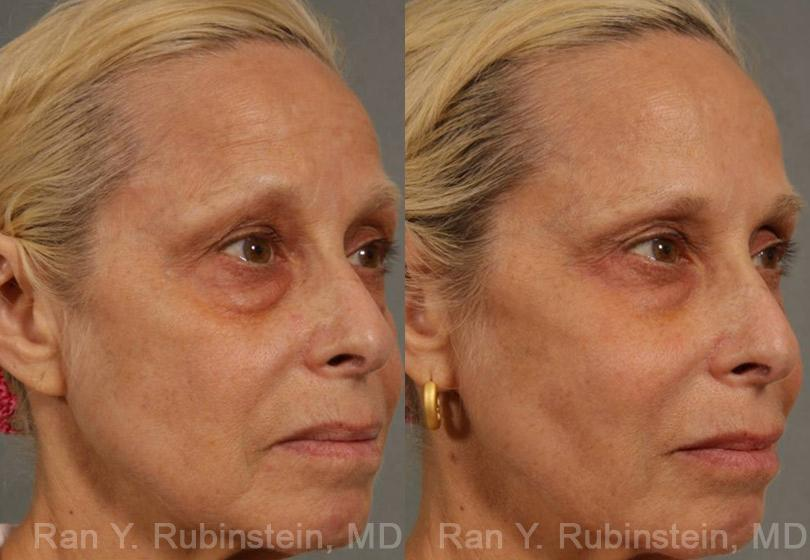 Injectable Fillers before and after photos in Newburgh, NY, Patient 12766