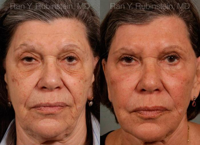 Injectable Fillers before and after photos in Newburgh, NY, Patient 12791