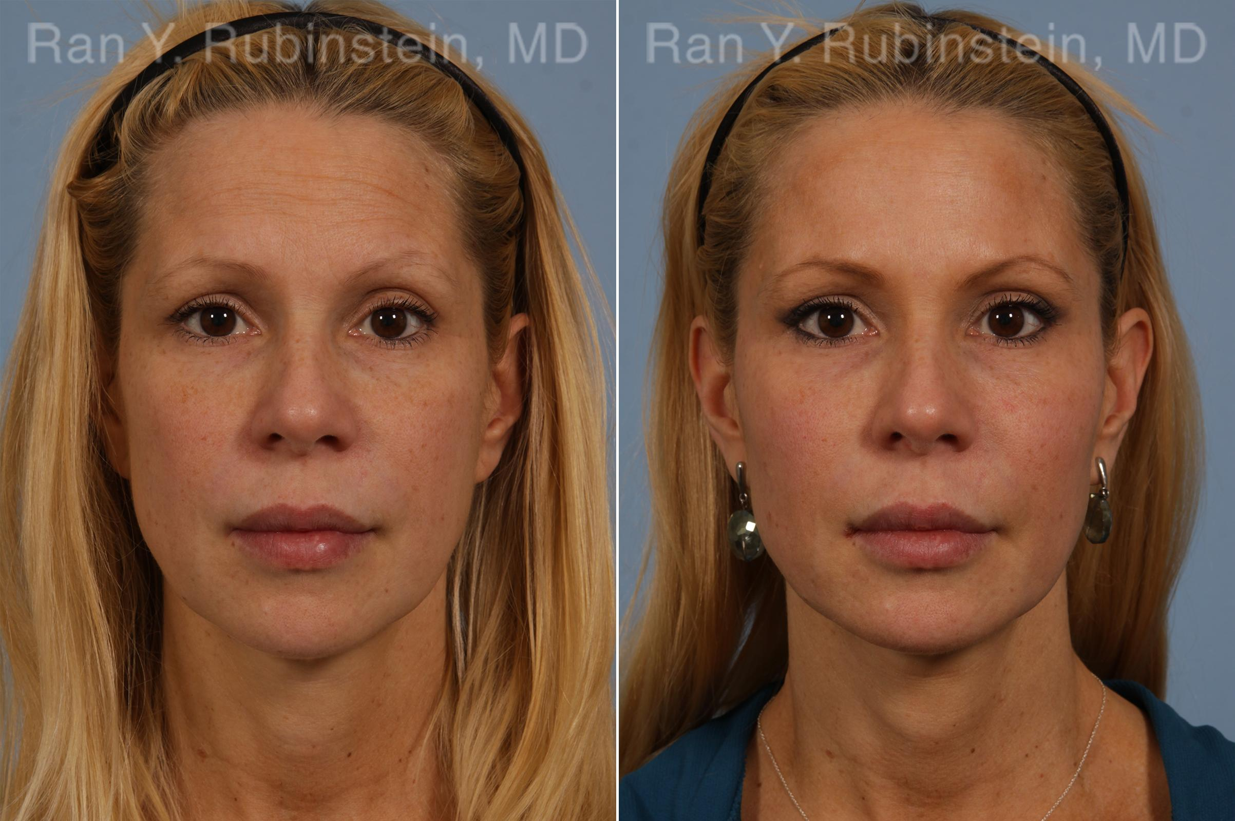 before and after photos in Newburgh, NY, Liquid Facelift | Hudson Valley, NY